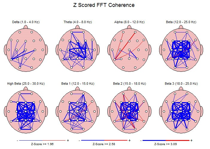 NeuroGuide coherence comparison